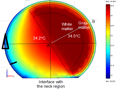 Brain cooling due to Intercarotid cooling device